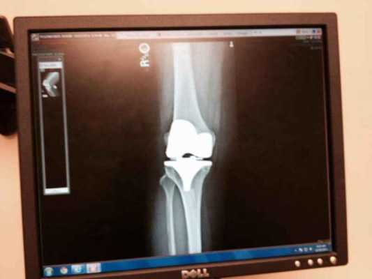 I'm Back, and I'm Bionic!